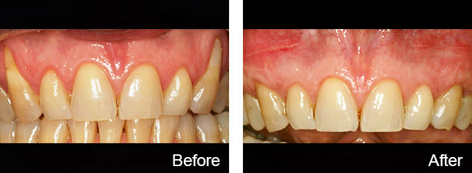 BnA 2017-03-24, Dallas Periodontal Associates - Dental Implants & Gum Disease