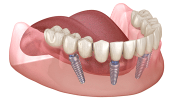 full arch implant graphic