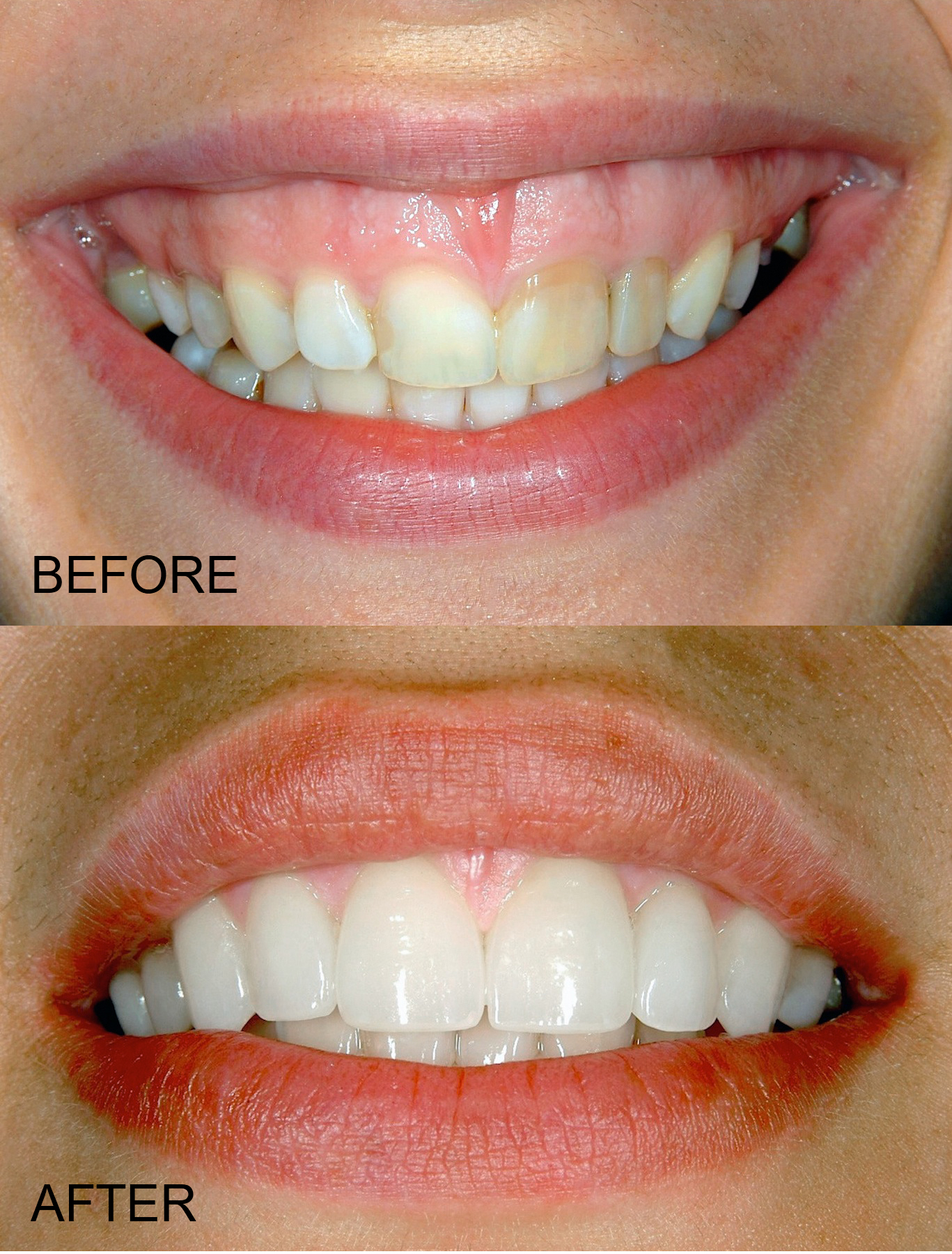What is a Gummy Smile?, Dallas Periodontal Associates - Dental Implants & Gum Disease
