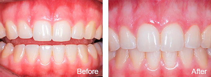 This patient received esthetic crown lengthening.
