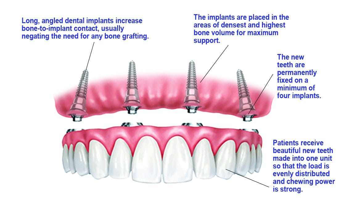 New Teeth in One Day, Dallas Periodontal Associates - Dental Implants & Gum Disease