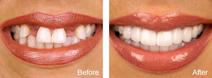Before & After -Dental Implant Restoration