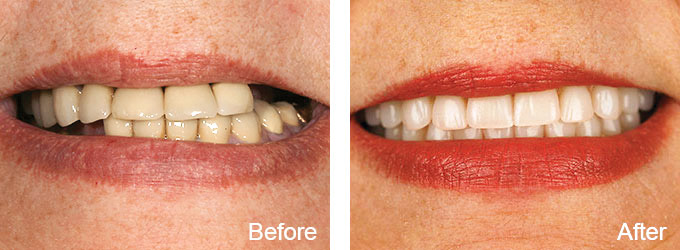 Before & After - Dental Restoration