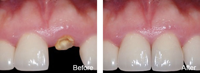 Before & After - Dental Implant Replacement Tooth