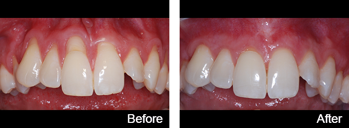 This patient's gum recession was treated with expert gum grafting.