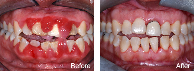 BnA3, Dallas Periodontal Associates - Dental Implants & Gum Disease