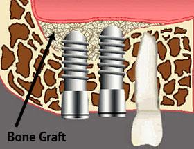 Bone graft and Sinus lift