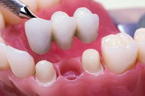 dallas periodontist