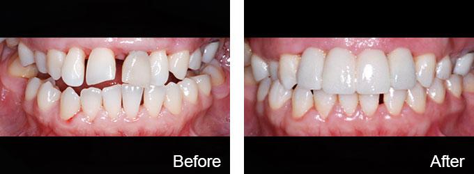 case-8 (implants)