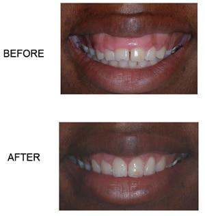 Cosmetic Gum Treatment – Crown Lengthening, Dallas Periodontal Associates - Dental Implants & Gum Disease