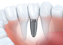 features-implants, Dallas Periodontal Associates - Dental Implants & Gum Disease