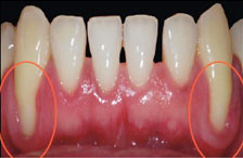 Gum Disease treatment in dallas