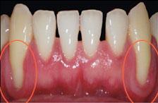 Gum Disease treatment in dallas
