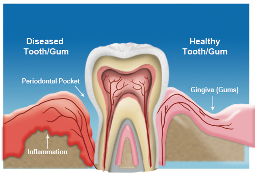 Dallas Gum Disease treatment
