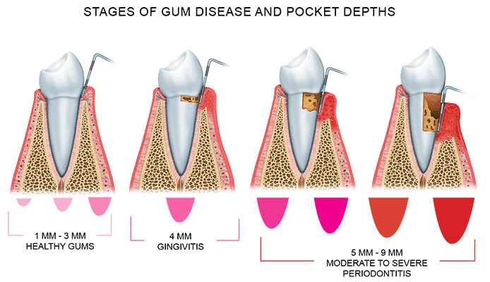 Getting Expert Periodontal Treatment, Dallas Periodontal Associates - Dental Implants & Gum Disease
