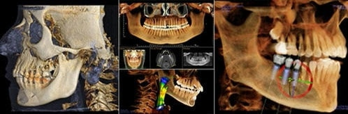 3D CT Scan