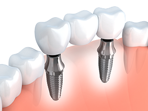 Implant Options for Missing Teeth in Dallas