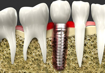Dental Implant Problems in Dallas