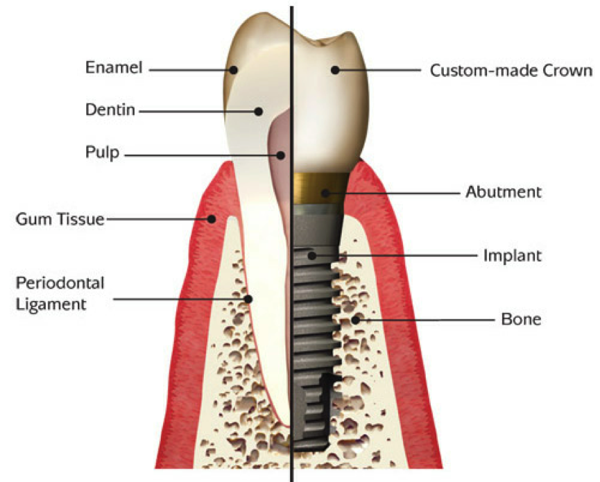 Dental Implants… Are they right for me?, Dallas Periodontal Associates - Dental Implants & Gum Disease