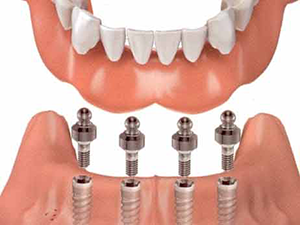 dallas implant-supported dentures