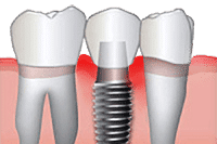 Dental Implant Cleanings