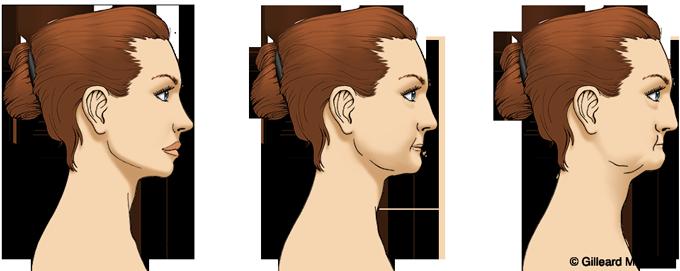 jaw bone reduction graphic