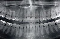 Panoramic Digital X-Ray
