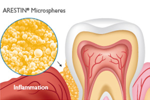 Arestin Antibiotic Therapy Gum Disease Treatment in Dallas