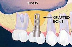 Bone Grafting & Sinus Lifts